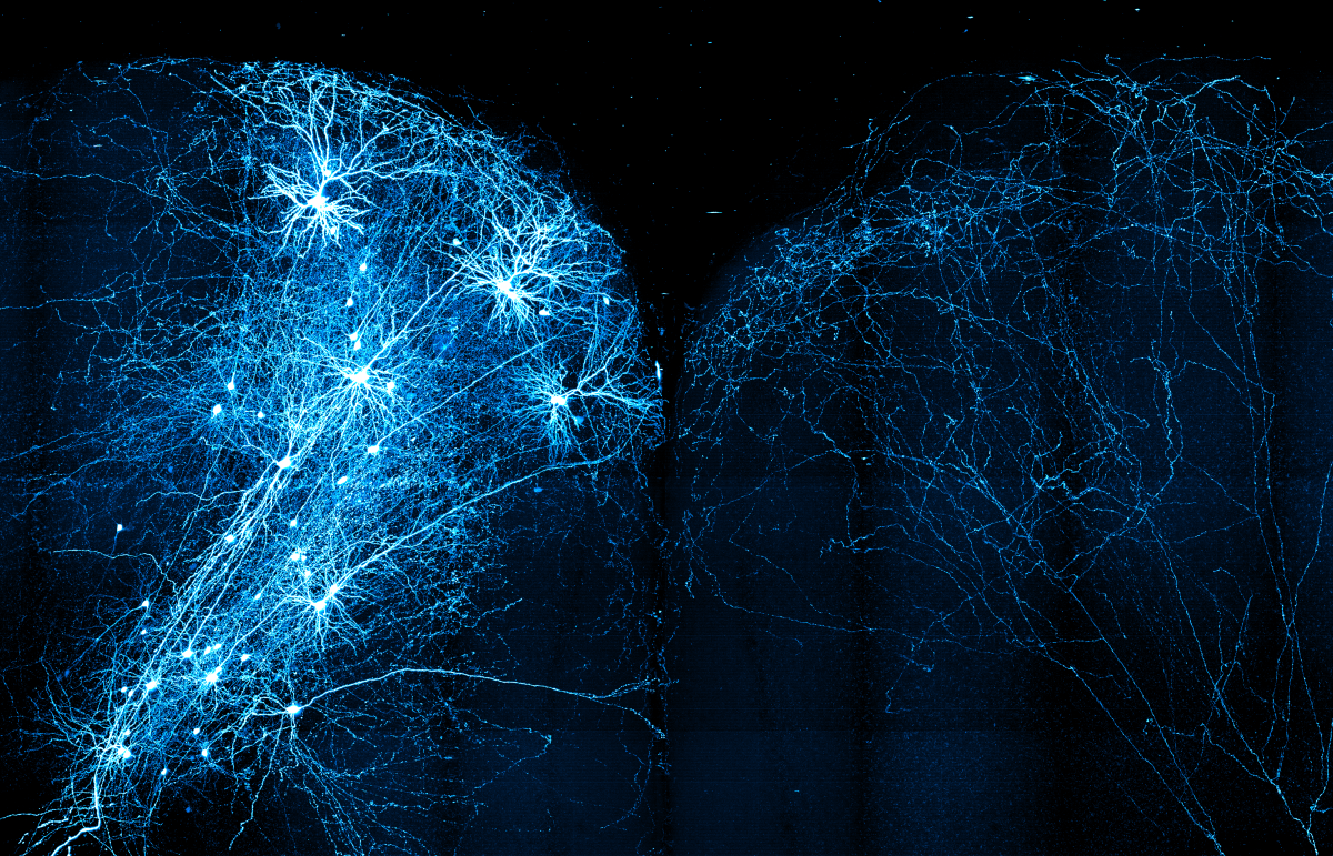 Intertwining mouse neurons, illuminated in blue, stretch across the brain