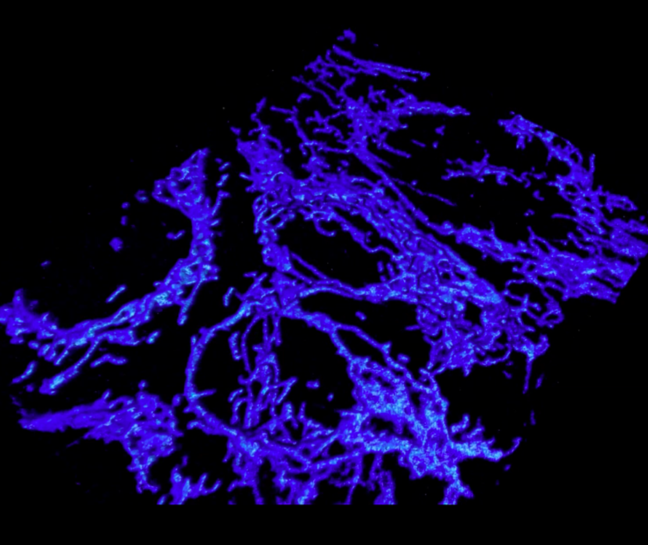 Revealing the unique morphology of mitochondria during apoptosis in mouse embryonic fibroblasts.